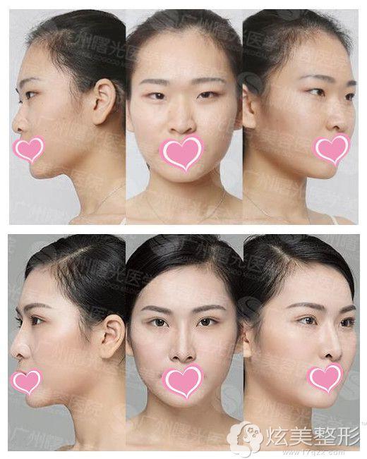 在广州曙光做眼鼻整形术前术后对比