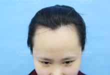 大脑门发量少的90后姑娘到深圳鹏程做发际线种植全过程