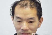 秃顶大叔在深圳鹏程做发际线+头顶大面积种植后帅气逼人