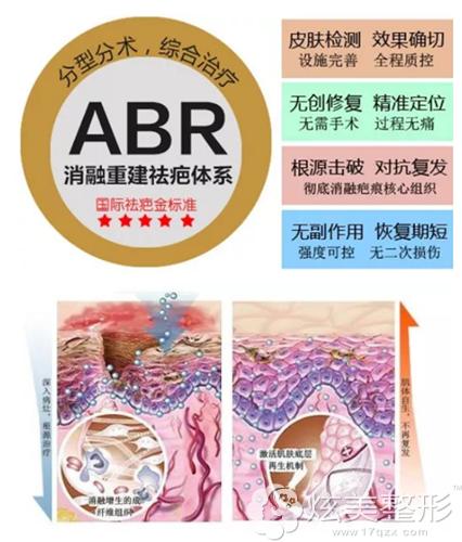 ABR消融重建祛疤体系治疗疤痕原理