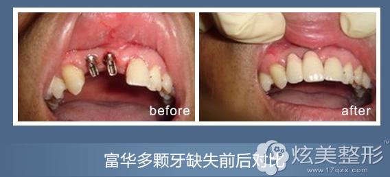 多颗牙缺失到深圳富华种植牙案例