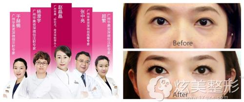 广州华美整形医院注射除皱案例