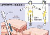 360度环形吸脂术后需要多久恢复