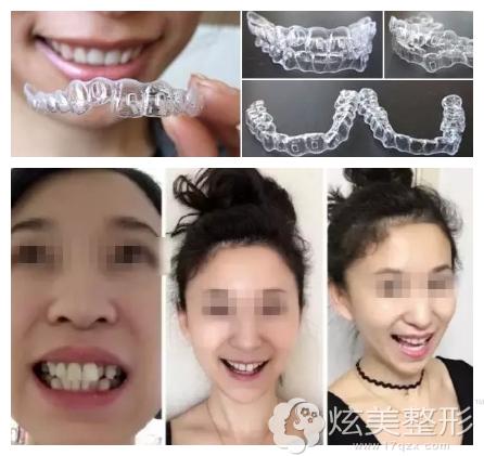 北京维尔口腔隐适美矫正案例