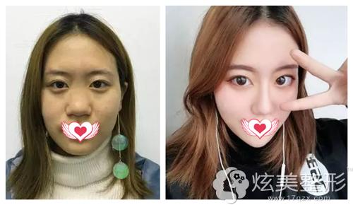 惠州鹏爱鼻综合手术案例