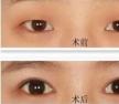 哪种情况适合开眼角?做双眼皮开眼角费用大概需要多少