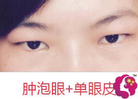 肿眼泡+单眼皮