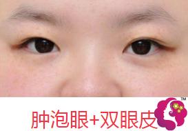肿泡眼+双眼皮