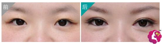 内双做眼部吸脂+双眼皮案例