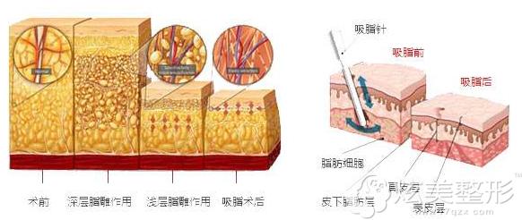 腹部吸脂原理图解