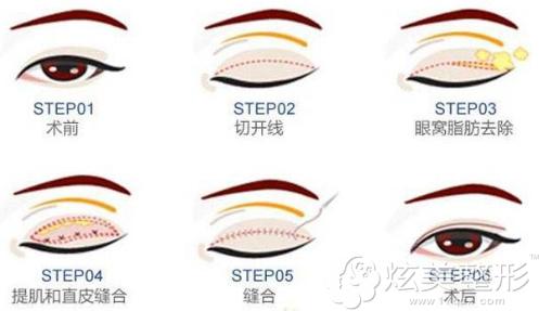 割双眼皮的手术方法