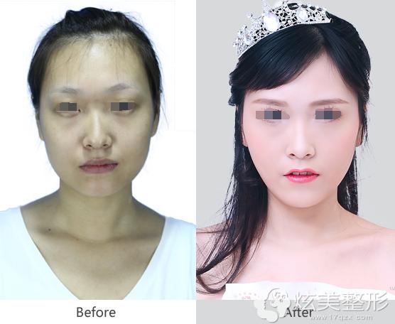 纳米脂肪填充全脸案例