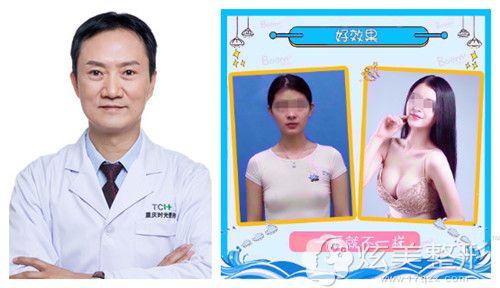 冯辉利专家隆胸案例