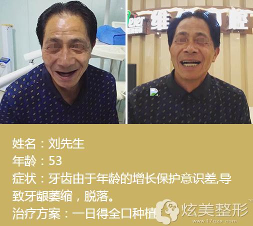 北京全口种植牙对比案例