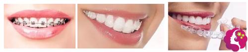 上海做牙齿矫正价格贵不贵?能不能改善宽脸凸嘴情况