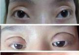 双眼皮做宽了如何修复?有广州海峡双眼皮宽改窄的案例吗