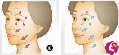面部拉皮除皱术图解