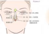 上海伊莱美整形刘安堂告诉你做了鼻中隔隆鼻可以取出吗