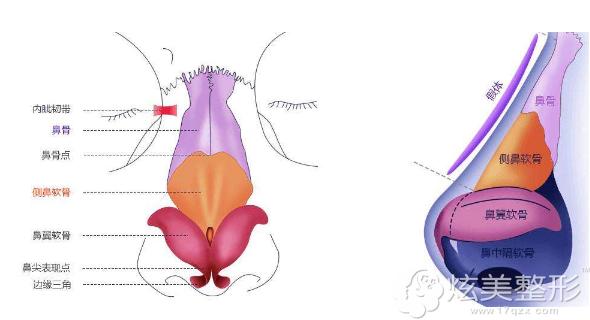 达拉斯隆鼻采用假体+自体软骨组合塑形