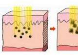 易阳亮专家讲面部祛斑方法中首推超皮秒激光祛斑更彻底