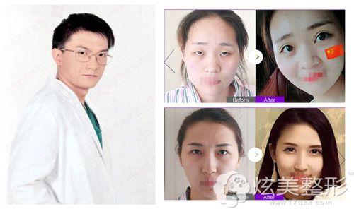 葛志鑫博士双眼皮案例