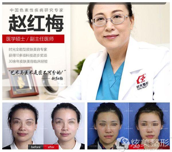 上海时光赵红梅专家热玛吉除皱案例