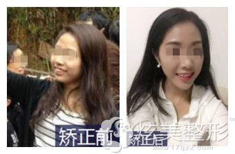 广东珠海仁爱口腔中心牙齿矫正案例