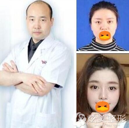 重庆时光彭利涛院长以及鼻整形案例