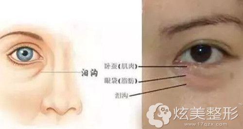泪沟和眼袋的区别