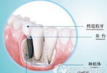 多颗牙缺失选北京哪家口腔医院做种植牙齿好