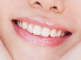 多颗牙缺失选北京哪家口腔种植牙齿好