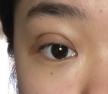 埋线双眼皮10mm太宽怎么办?合肥华美眼修复哪个医生好