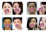 微博看李丽强福州海峡眼综合案例做开扇形双眼皮+开眼角