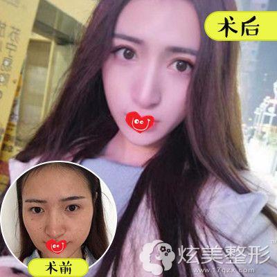 北京壹加壹注射瑞蓝玻尿酸案例