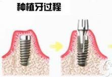 了解种植牙寿命可参考这份北京具权威排名的口腔医生介绍