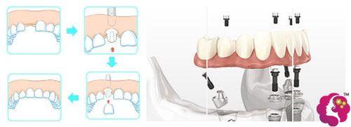 峰煜口腔医院种植牙齿过程