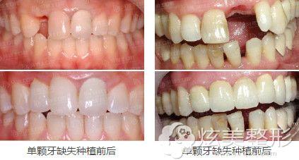 厦门峰煜口腔医院种植牙案例