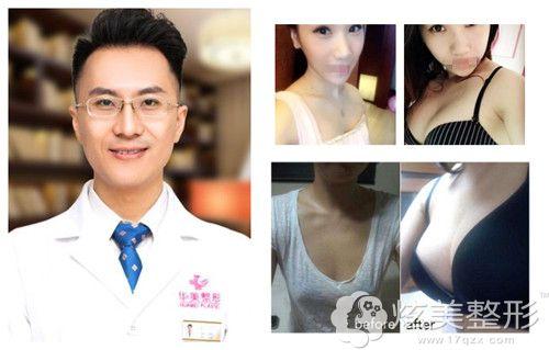华美王海龙专家隆胸手术案例