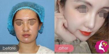 硅胶假体隆鼻案例