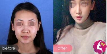 膨体隆鼻案例