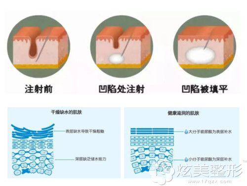 大分子玻尿酸主要用来注射填充塑形