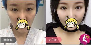 姜宗和专家失败双眼皮修复案例