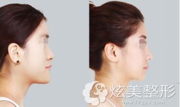 刘安堂鼻综合案例