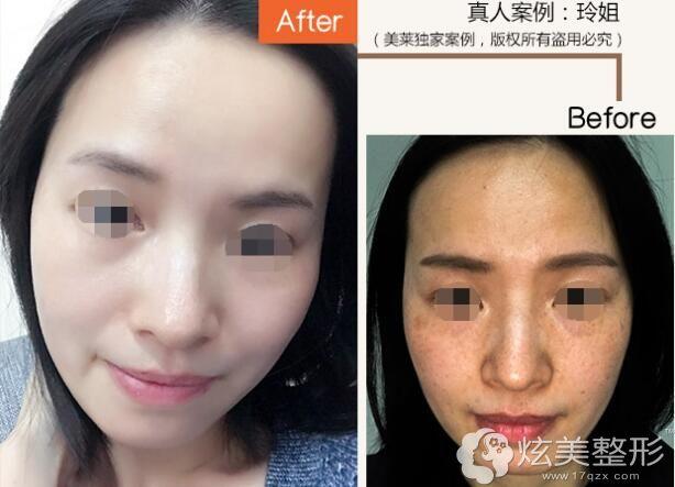 王溪涛专家祛斑案例