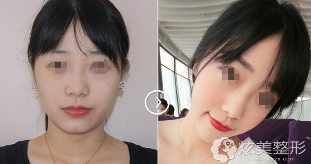 李高峰双眼皮案例