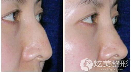 驼峰鼻矫正前后对比案例