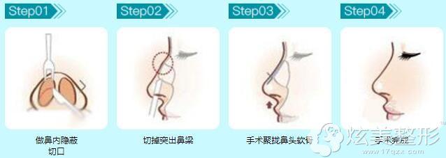 中、重度驼峰鼻矫正步骤