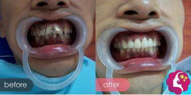 宁波恒美口腔牙齿贴面洗牙案例