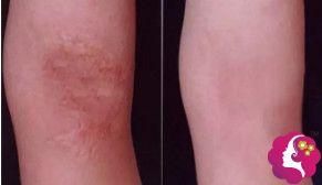 北京长虹整形医院疤痕修复案例