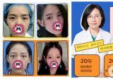 杭州割双眼皮整形医生盘点:张霞飞、周长兵、范希玲谁好